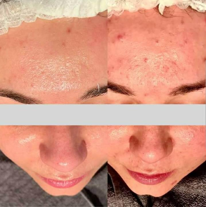 Efekty zabiegow przed i po Tradzik pospolity na czole Chantarelle laseroterapia