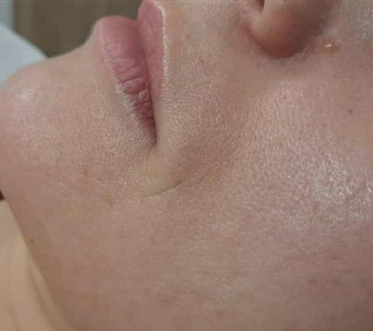 Redukcja zmarszczek wokol ust laseroterapia Plant Plasma Chantarelle PO