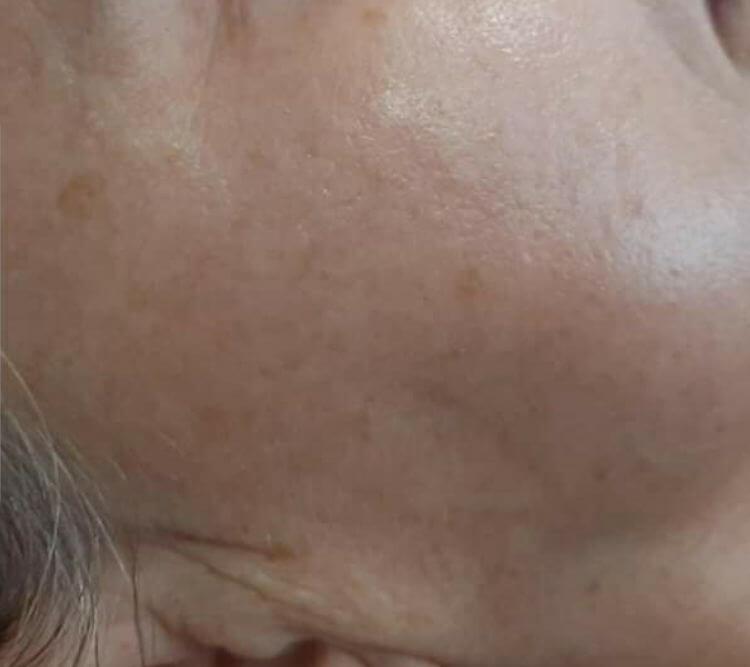 Zabieg na plamy przebarwienia nierownosci PO Chantarelle Laseroterapia